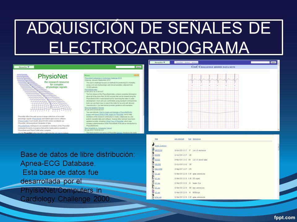 ADQUISICIÓN DE SEÑALES DE ELECTROCARDIOGRAMA