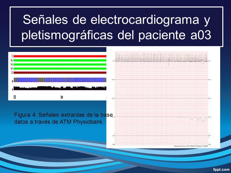 Señales de electrocardiograma y pletismográficas del paciente a03