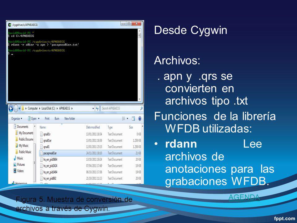 . apn y .qrs se convierten en archivos tipo .txt
