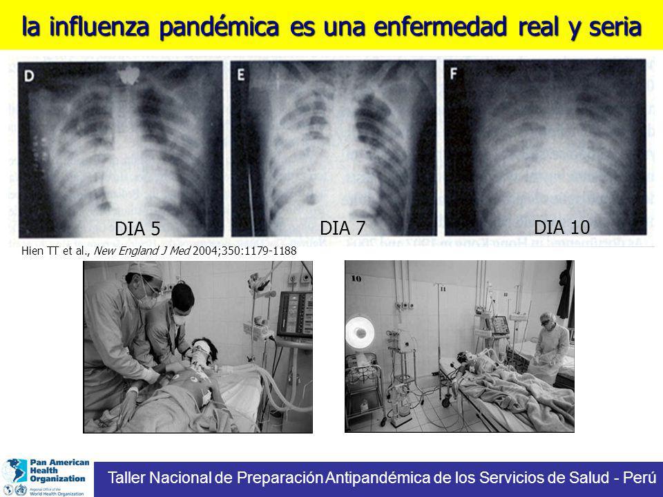 la influenza pandémica es una enfermedad real y seria