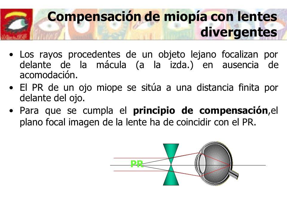 Compensación de miopía con lentes divergentes