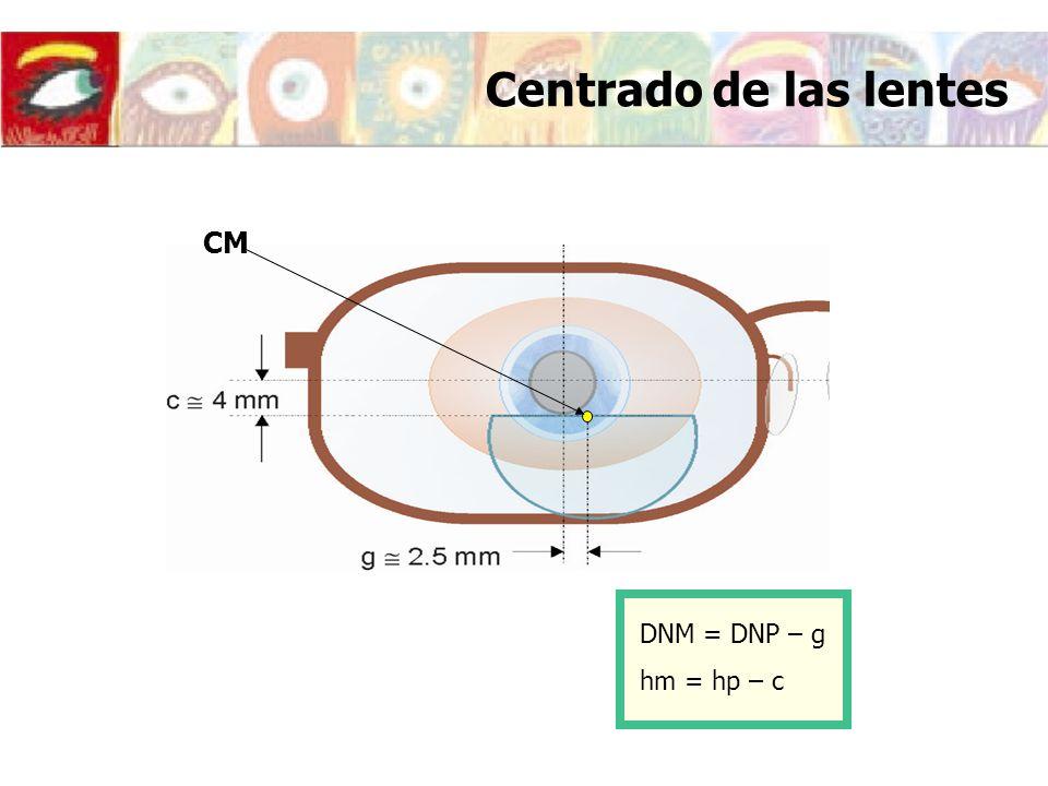 Centrado de las lentes CM DNM = DNP – g hm = hp – c