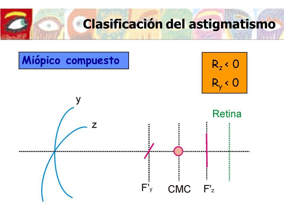 Clasificación del astigmatismo