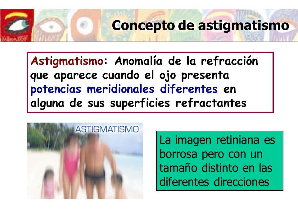 Concepto de astigmatismo
