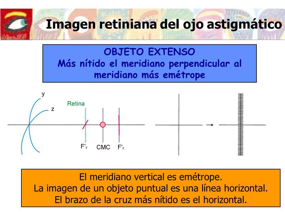 Imagen retiniana del ojo astigmático