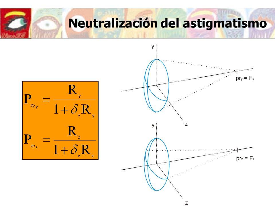 Neutralización del astigmatismo