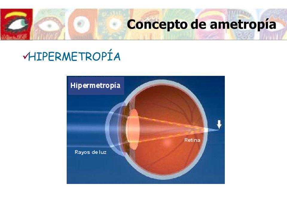 Concepto de ametropía HIPERMETROPÍA