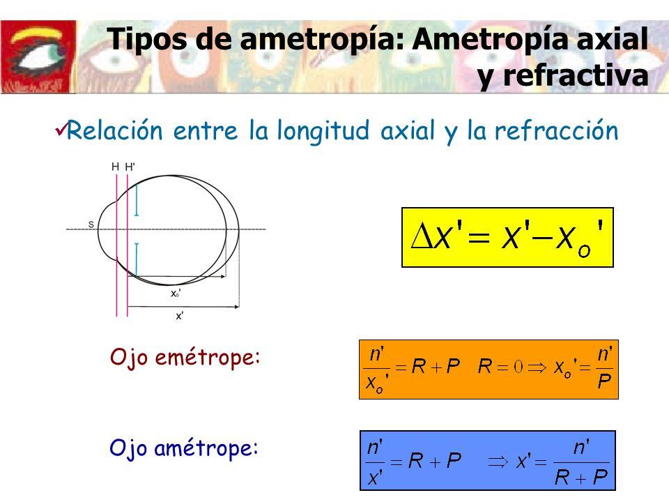 Tipos de ametropía: Ametropía axial y refractiva