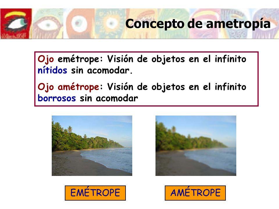Concepto de ametropía Ojo emétrope: Visión de objetos en el infinito nítidos sin acomodar.