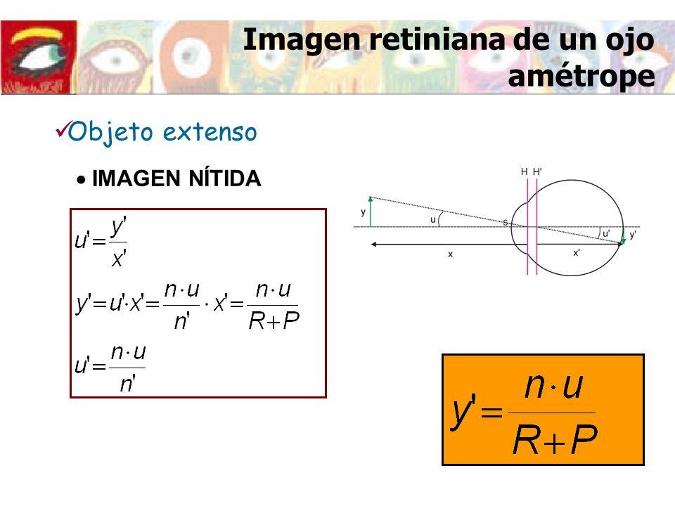 Imagen retiniana de un ojo amétrope