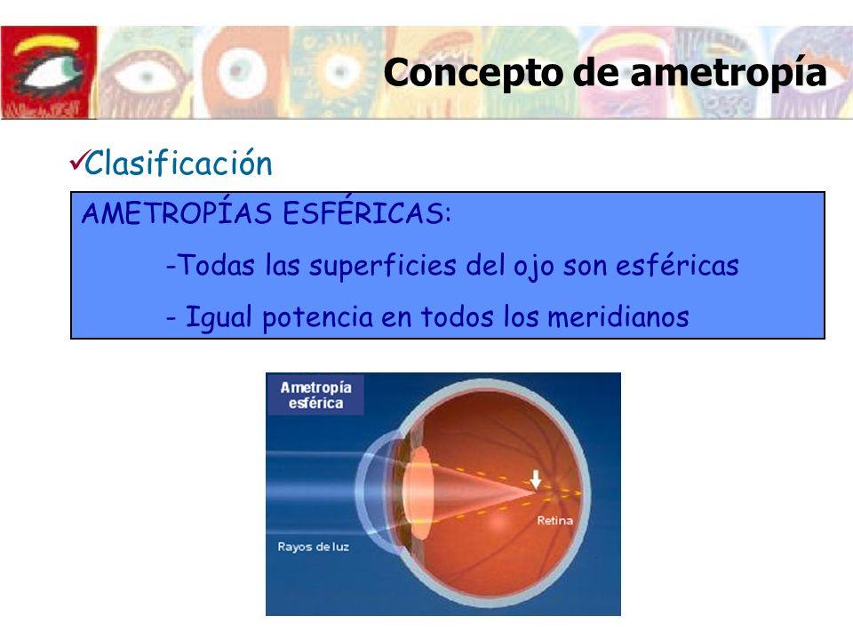 Concepto de ametropía Clasificación AMETROPÍAS ESFÉRICAS: