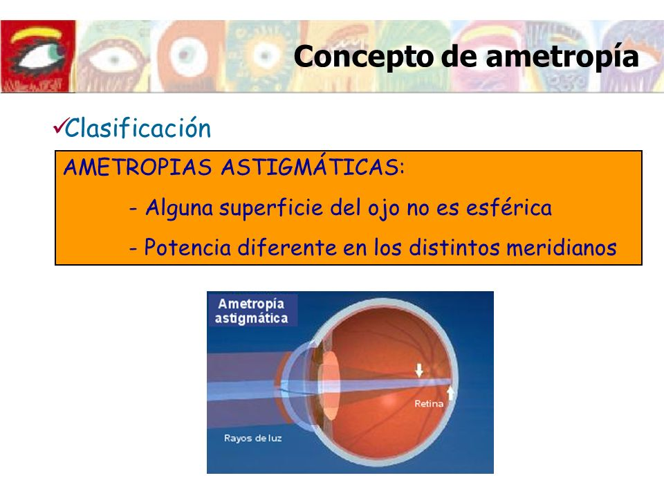 Concepto de ametropía Clasificación AMETROPIAS ASTIGMÁTICAS: