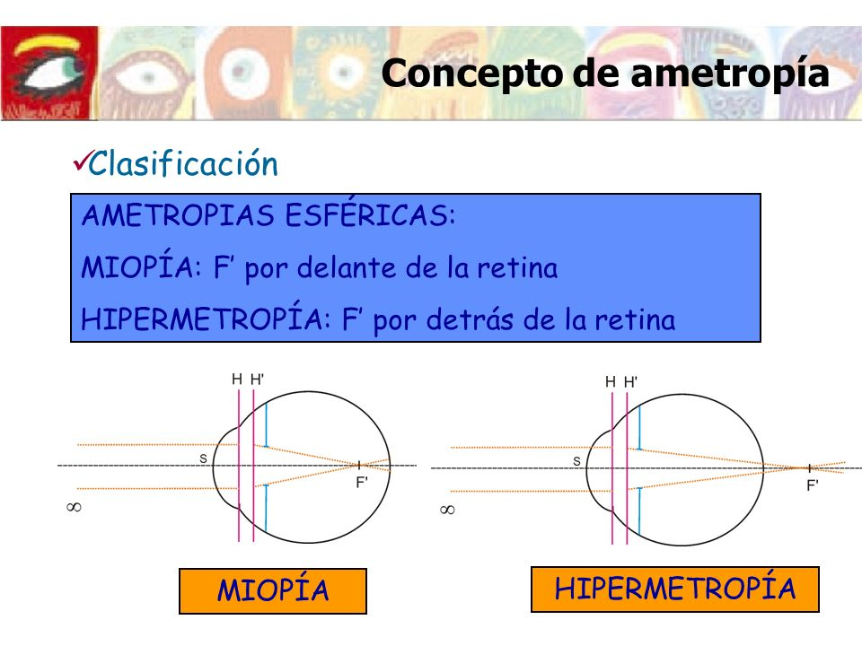 Concepto de ametropía Clasificación AMETROPIAS ESFÉRICAS: