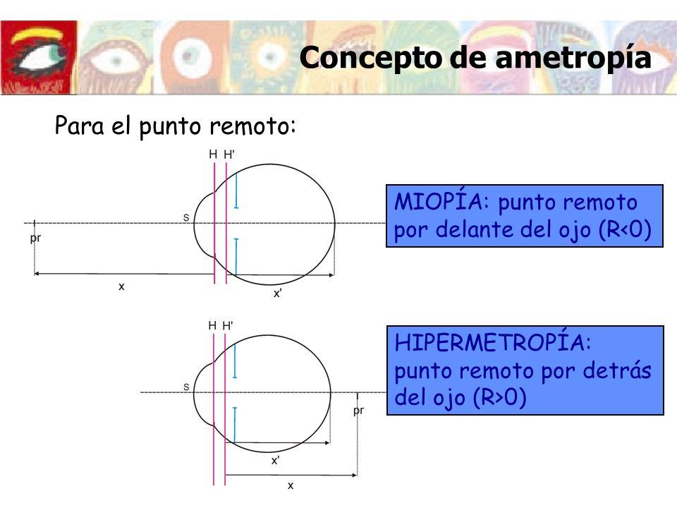 Concepto de ametropía Para el punto remoto: