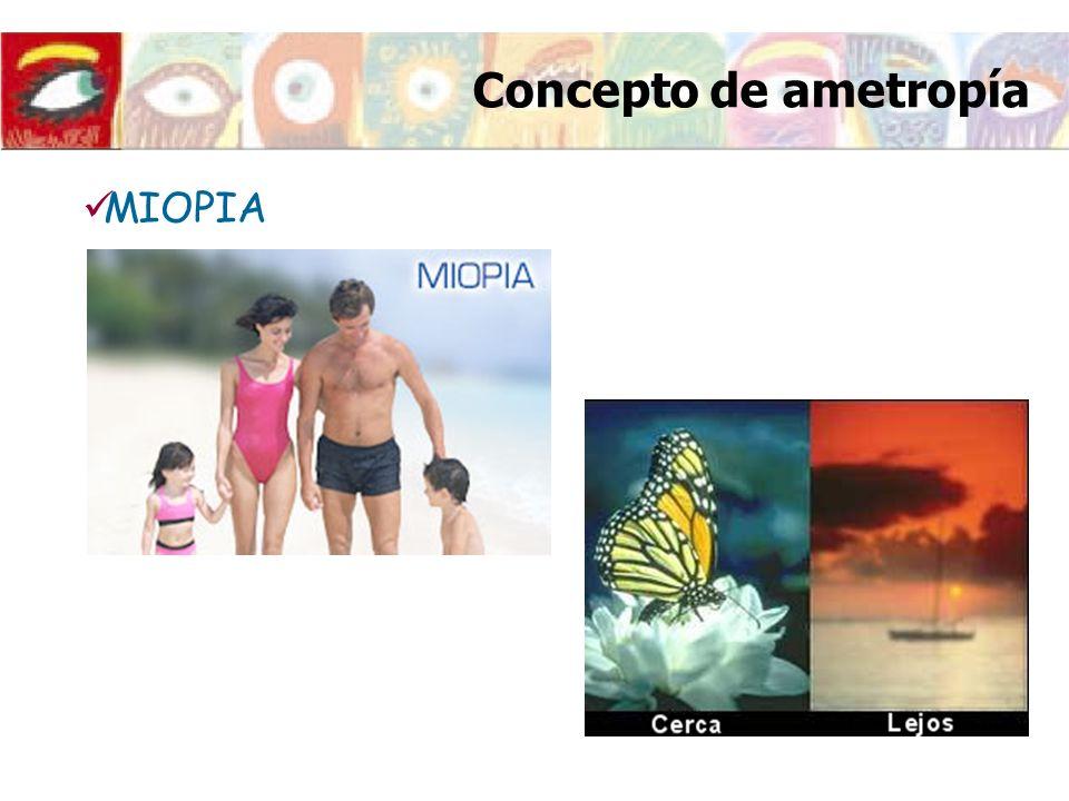 Concepto de ametropía MIOPIA