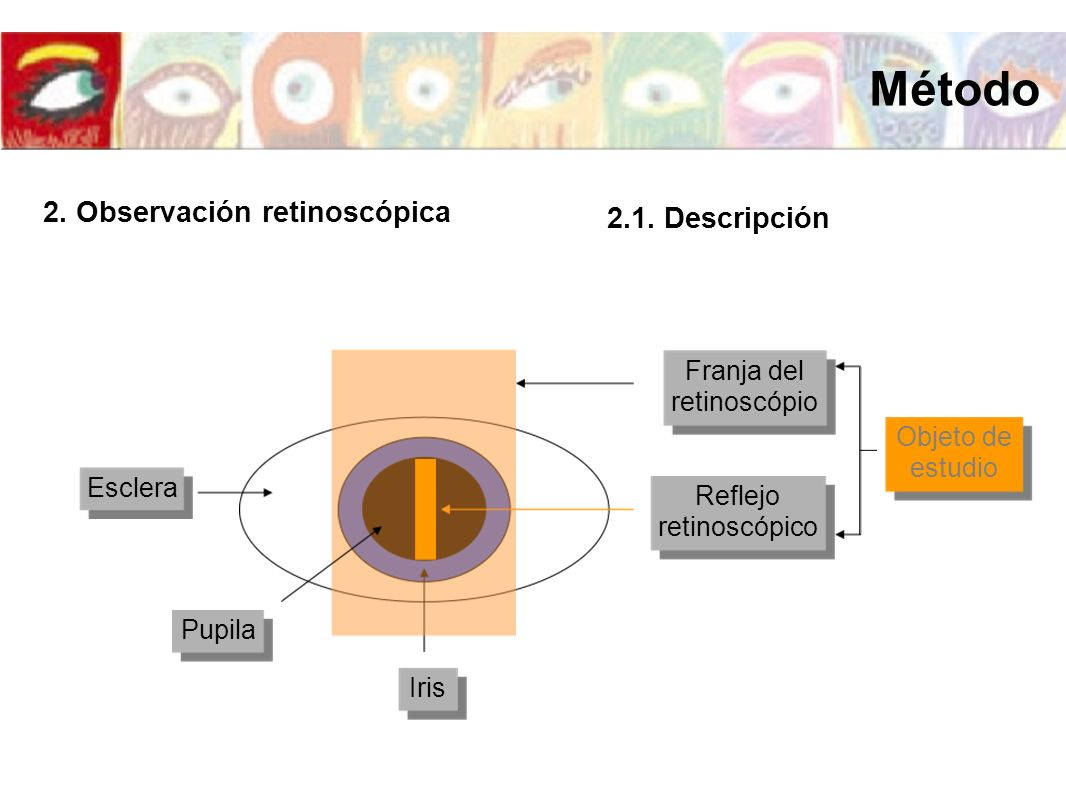 Método 2. Observación retinoscópica 2.1. Descripción Franja del