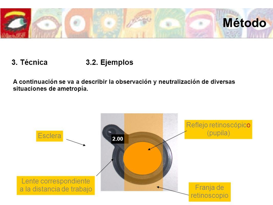 Método 3. Técnica 3.2. Ejemplos Reflejo retinoscópico (pupila) Esclera