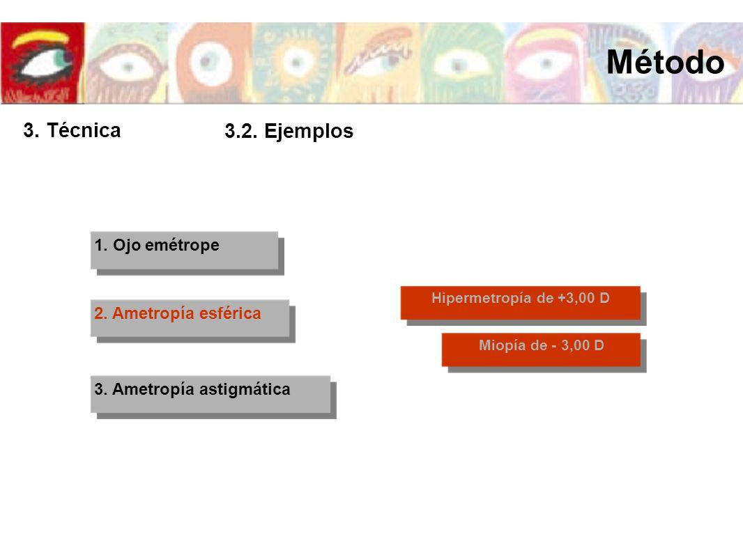 Método 3. Técnica 3.2. Ejemplos 1. Ojo emétrope 2. Ametropía esférica
