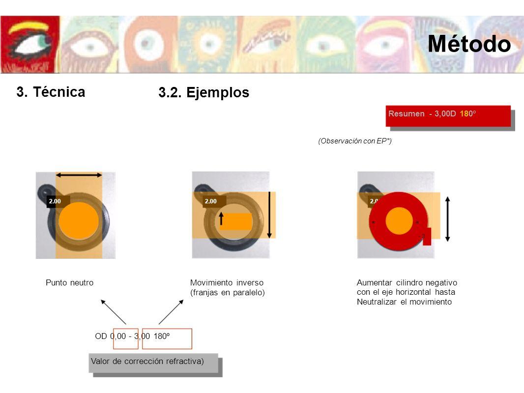 Método 3. Técnica 3.2. Ejemplos