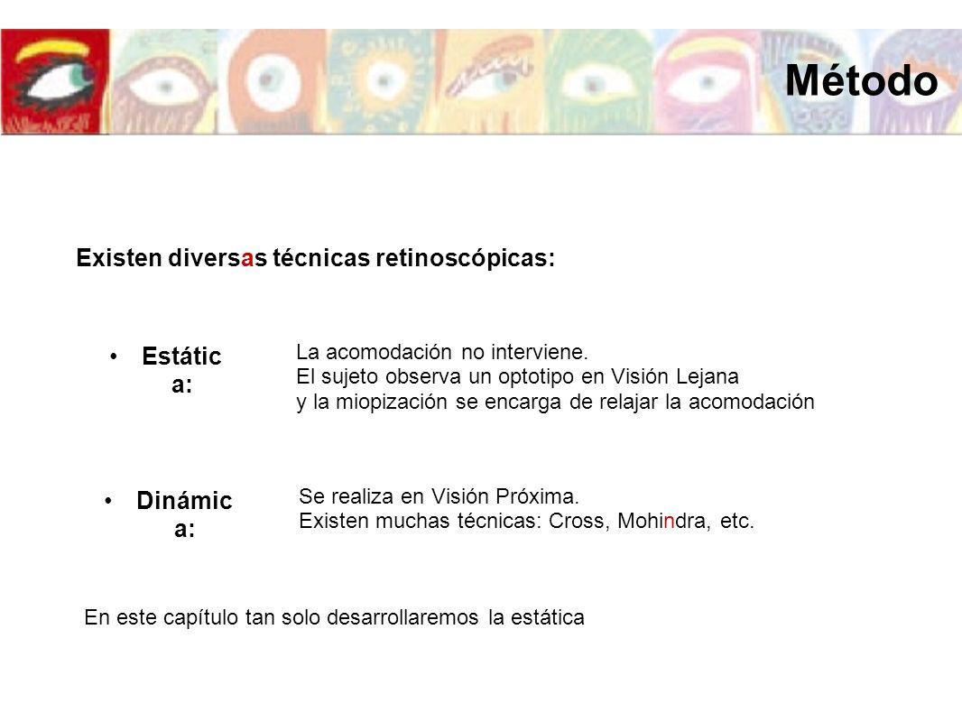 Existen diversas técnicas retinoscópicas: