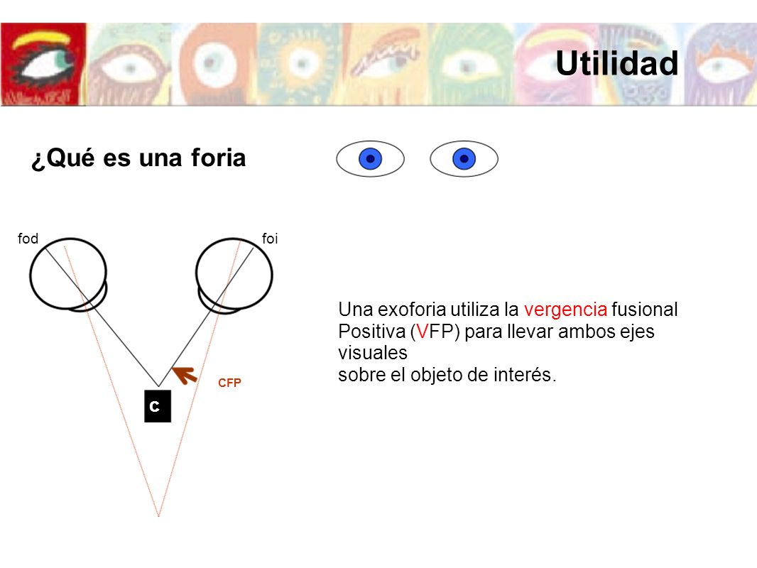 Utilidad ¿Qué es una foria Una exoforia utiliza la vergencia fusional