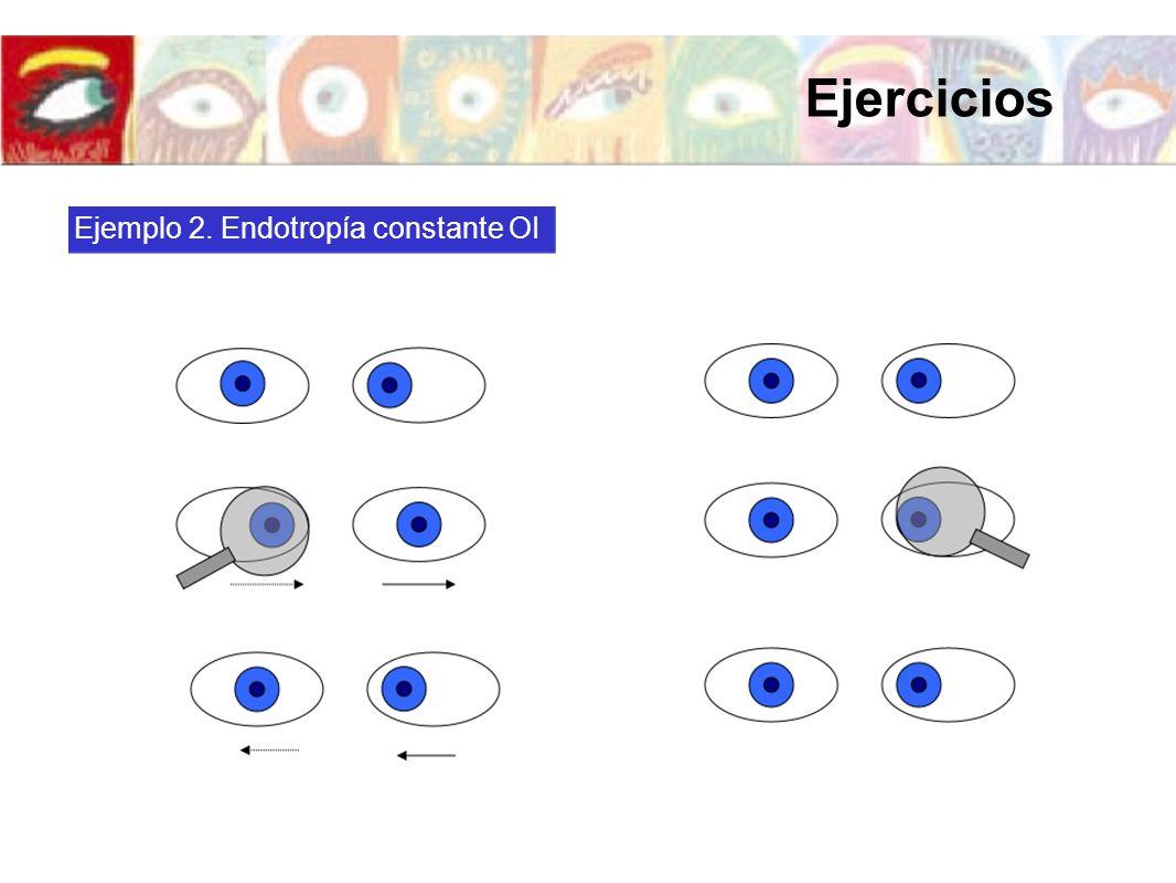 Ejercicios Ejemplo 2. Endotropía constante OI