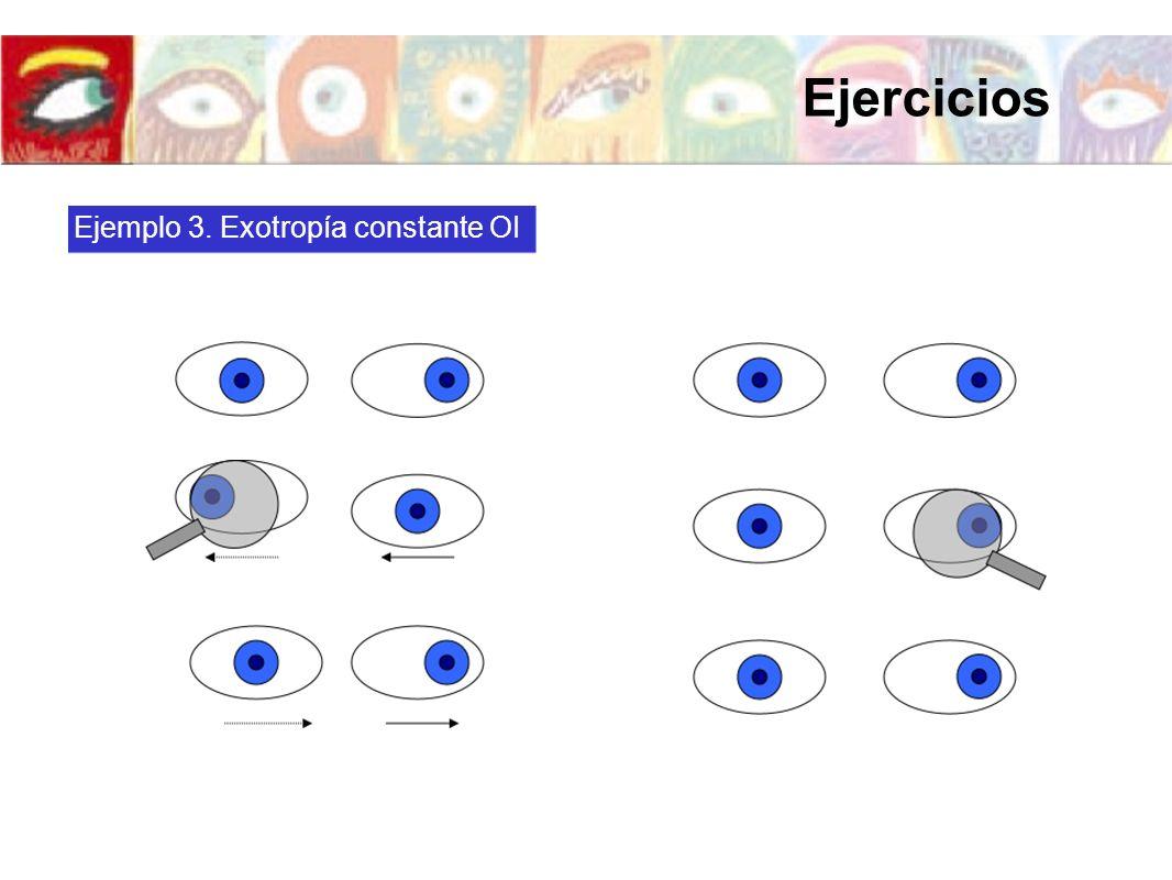 Ejercicios Ejemplo 3. Exotropía constante OI