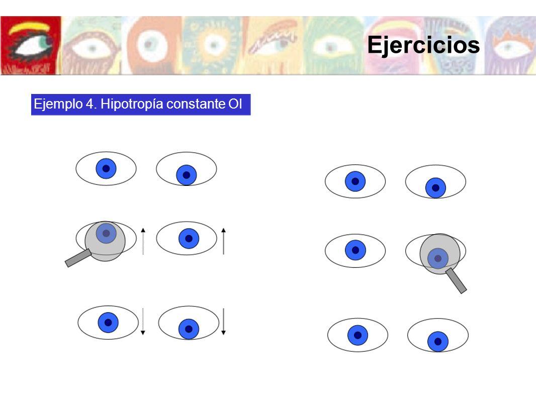 Ejercicios Ejemplo 4. Hipotropía constante OI