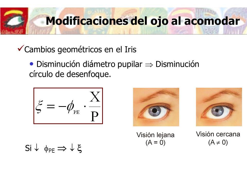 Modificaciones del ojo al acomodar
