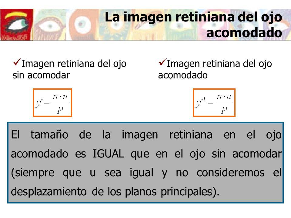 La imagen retiniana del ojo acomodado