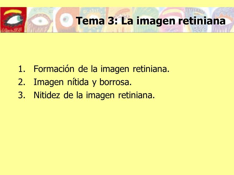 Tema 3: La imagen retiniana
