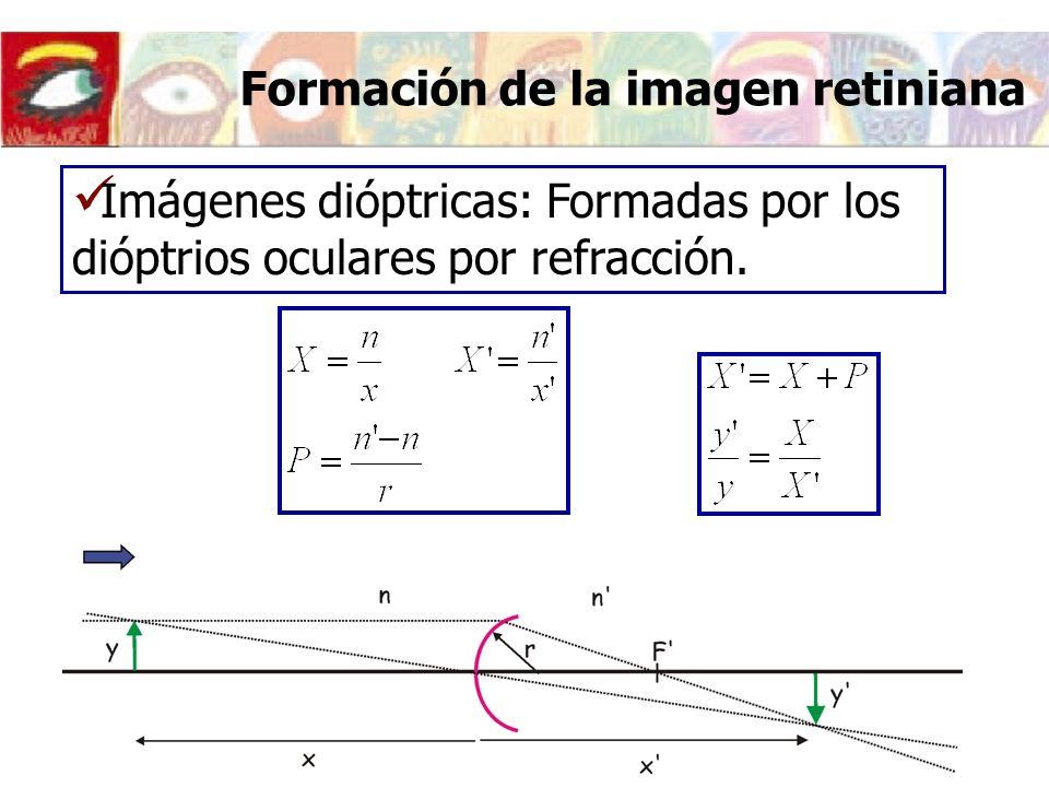 Formación de la imagen retiniana