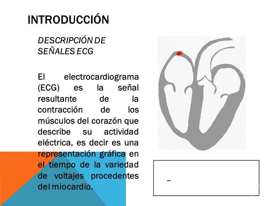 INTRODUCCIÓN DESCRIPCIÓN DE SEÑALES ECG