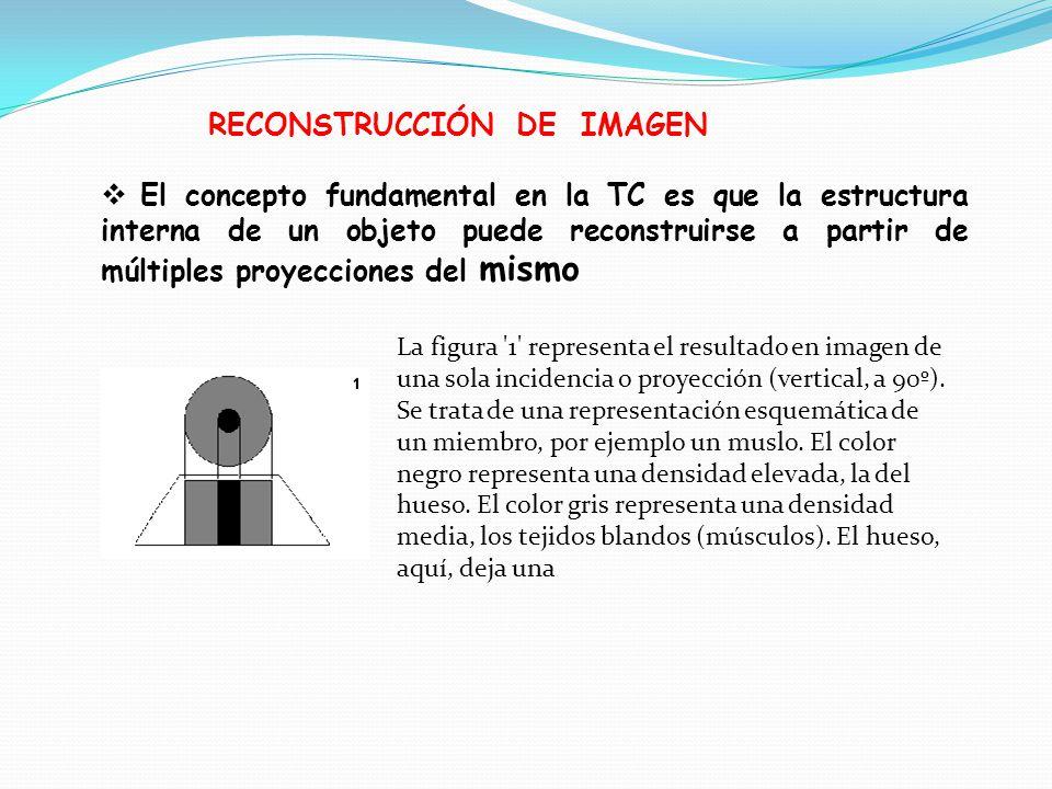 RECONSTRUCCIÓN DE IMAGEN