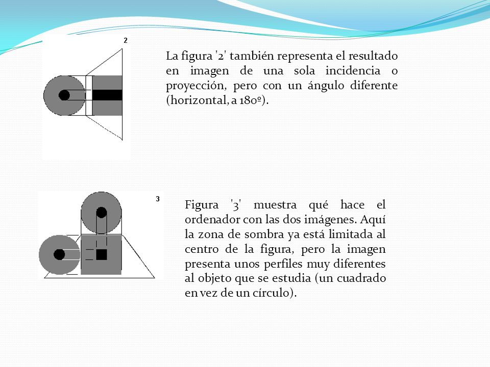 La figura 2 también representa el resultado en imagen de una sola incidencia o proyección, pero con un ángulo diferente (horizontal, a 180º).