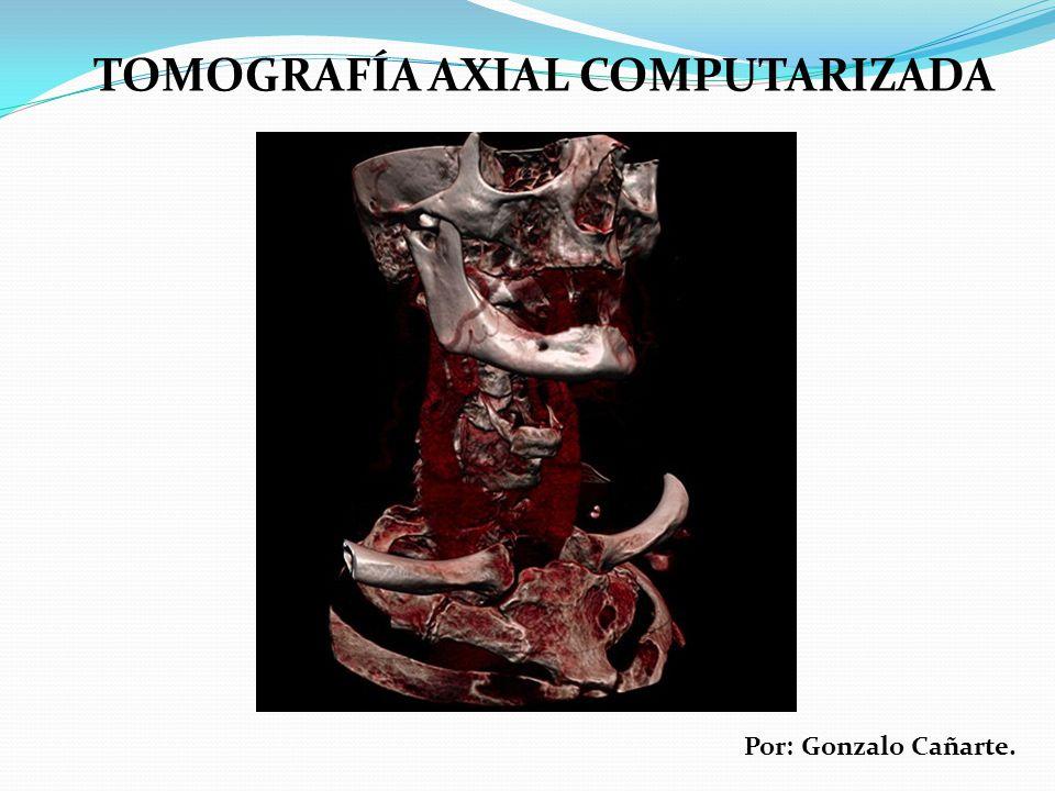 TOMOGRAFÍA AXIAL COMPUTARIZADA