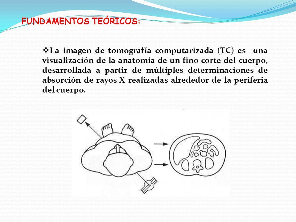 FUNDAMENTOS TEÓRICOS: