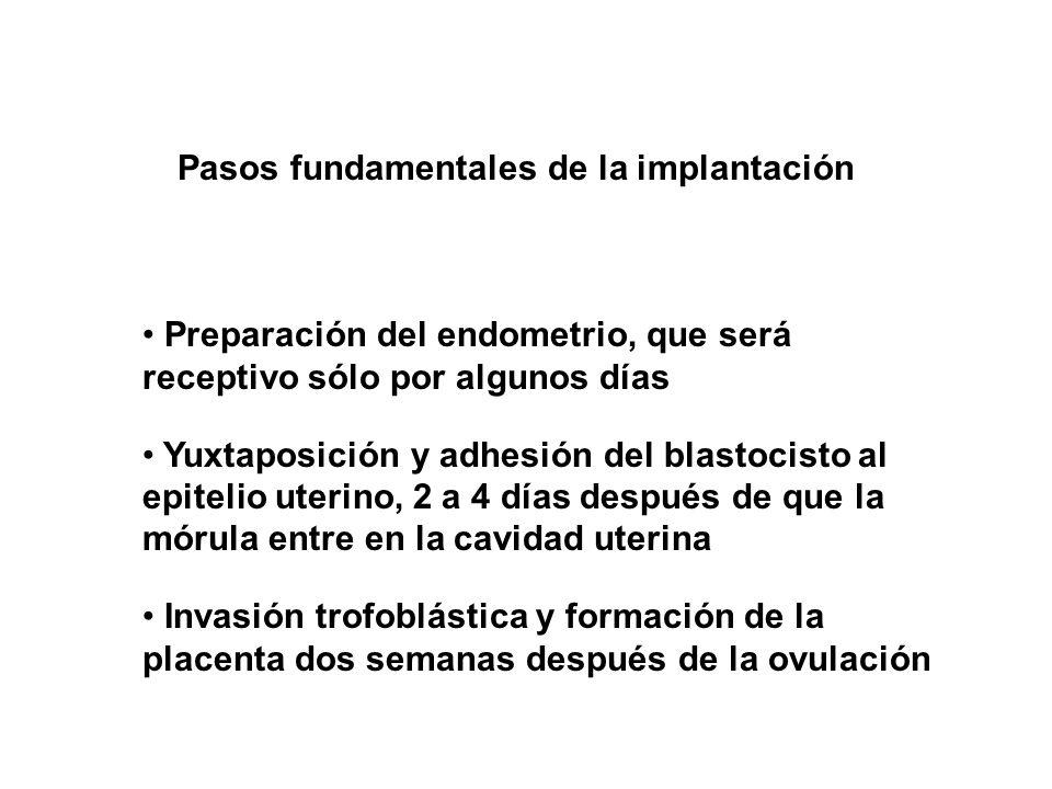 Pasos fundamentales de la implantación