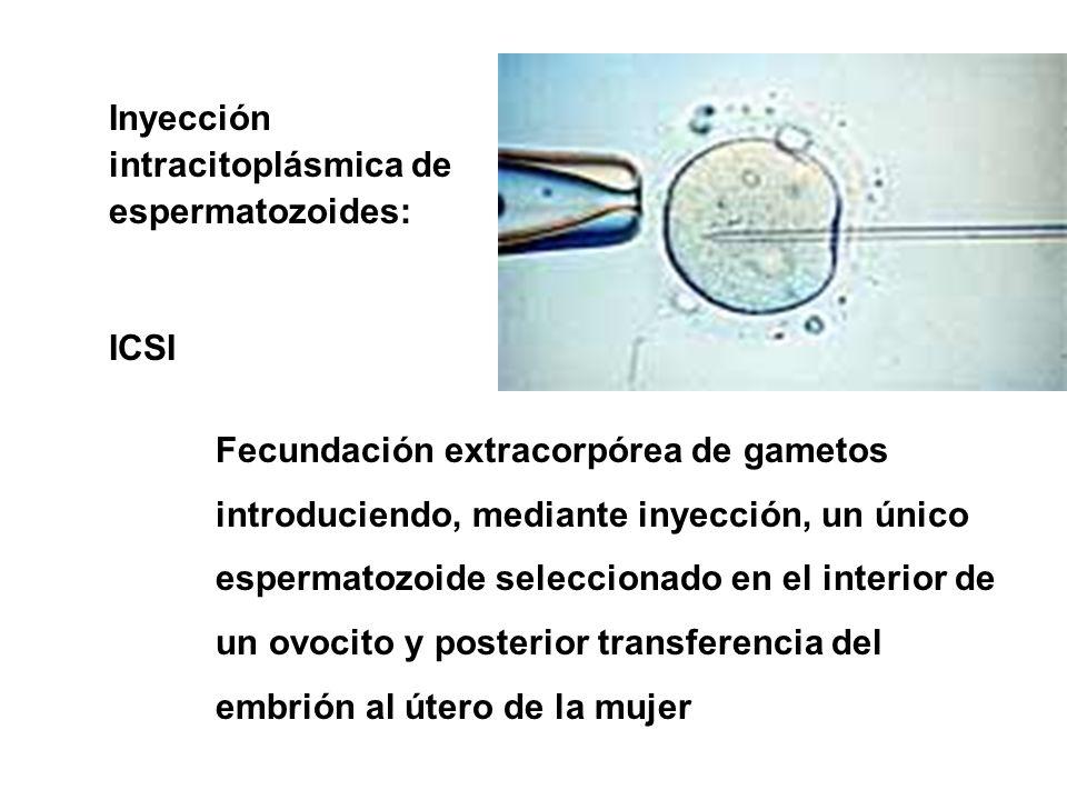 Inyección intracitoplásmica de espermatozoides: