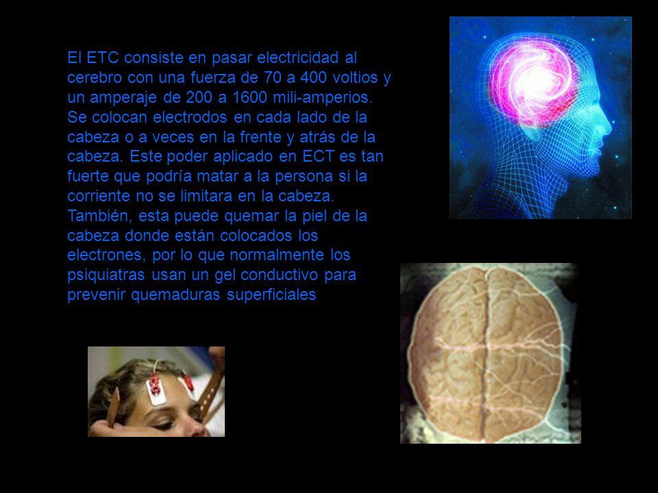 El ETC consiste en pasar electricidad al cerebro con una fuerza de 70 a 400 voltios y un amperaje de 200 a 1600 mili-amperios.