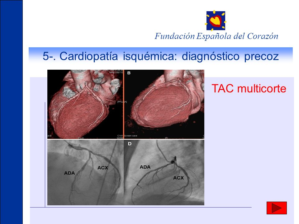 5-. Cardiopatía isquémica: diagnóstico precoz