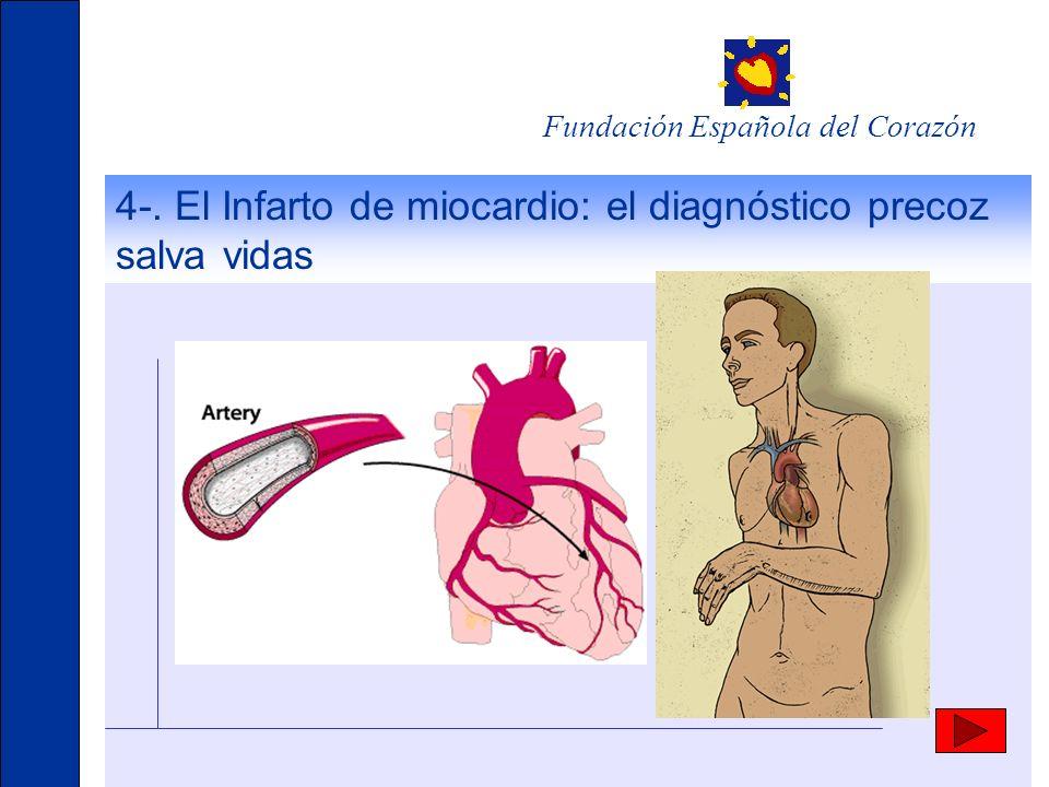 4-. El Infarto de miocardio: el diagnóstico precoz salva vidas