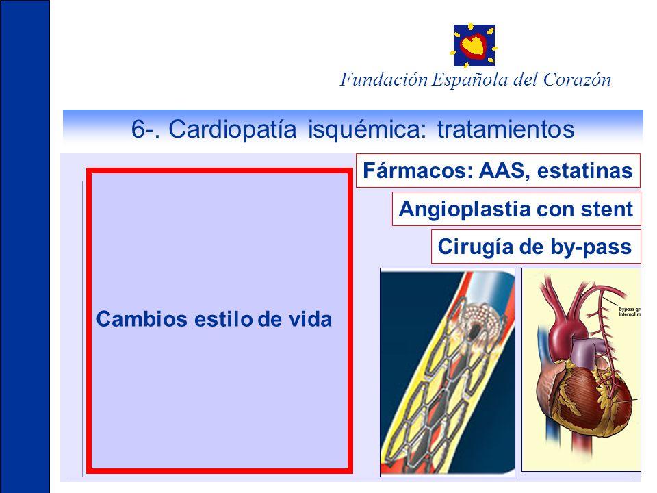 6-. Cardiopatía isquémica: tratamientos