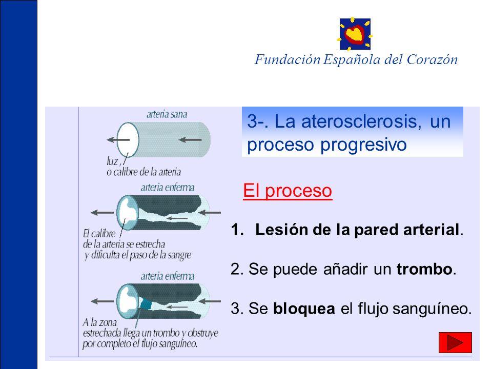 3-. La aterosclerosis, un proceso progresivo