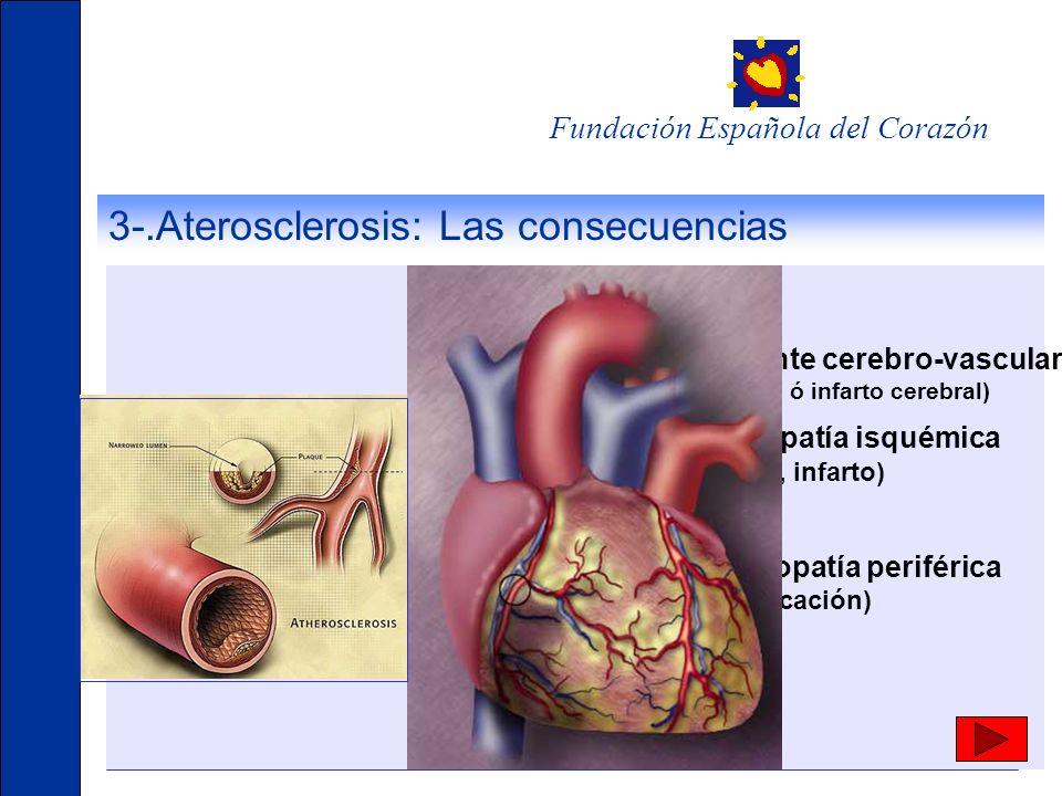 3-.Aterosclerosis: Las consecuencias