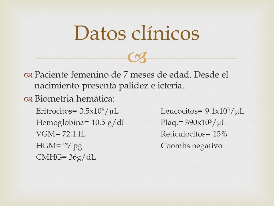 Datos clínicos Paciente femenino de 7 meses de edad. Desde el nacimiento presenta palidez e icteria.