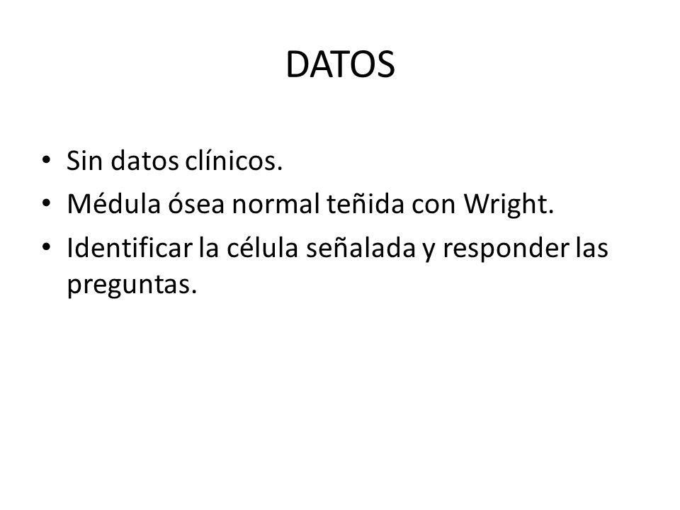 DATOS Sin datos clínicos. Médula ósea normal teñida con Wright.
