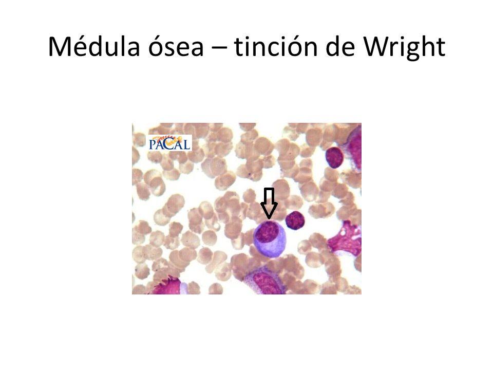 Médula ósea – tinción de Wright
