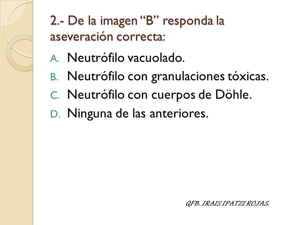 2.- De la imagen B responda la aseveración correcta: