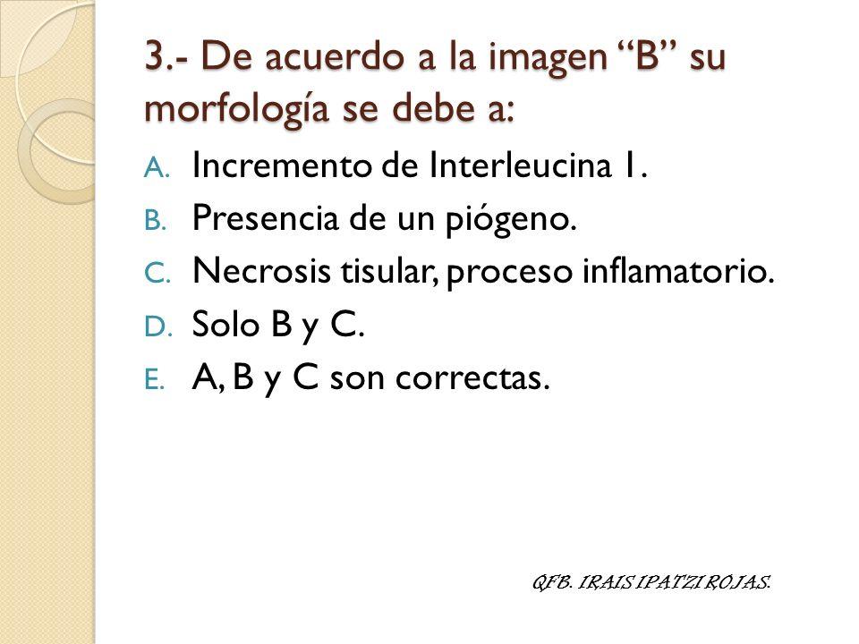 3.- De acuerdo a la imagen B su morfología se debe a: